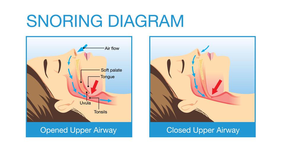 パートナーのいびきで眠れない!いびきを止める簡単な方法2