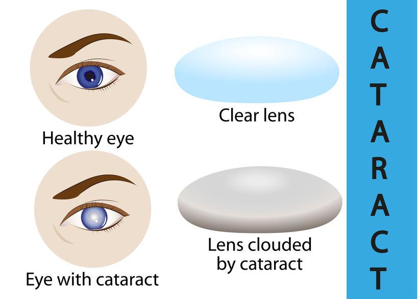 治療法が限られる目の加齢疾患は早期対策が最善策